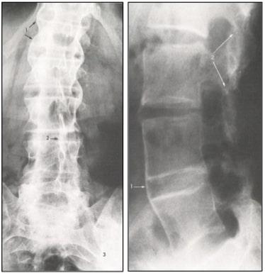 radiographie de face (à gauche) et de profil (à droite) d'une personne atteinte de spondylarthrite ankylosante