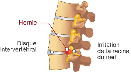 schématisation d'une hernie discale à l'origine d'une sciatique
