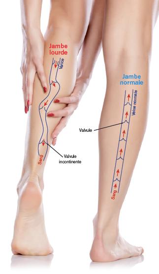 schématisation d'une veine en cas de jambes lourdes
