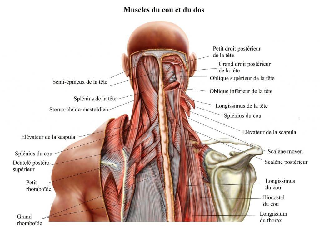 Schématisation des muscles du cou et du dos à l'origine du torticolis