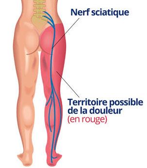 schématisation du trajet du nerf sciatique