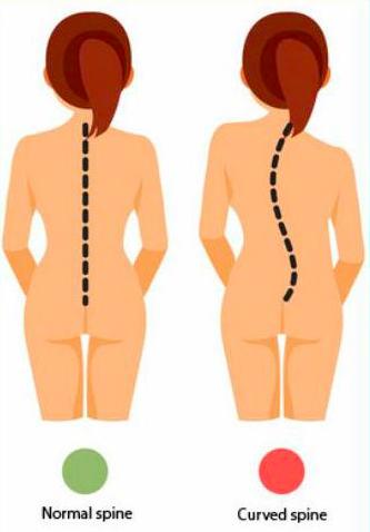 schématisation de la déformation vertébrale due à scoliose