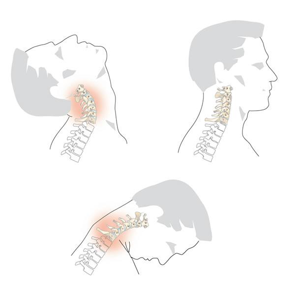 mécanisme du whiplash en flexion et extension de tete