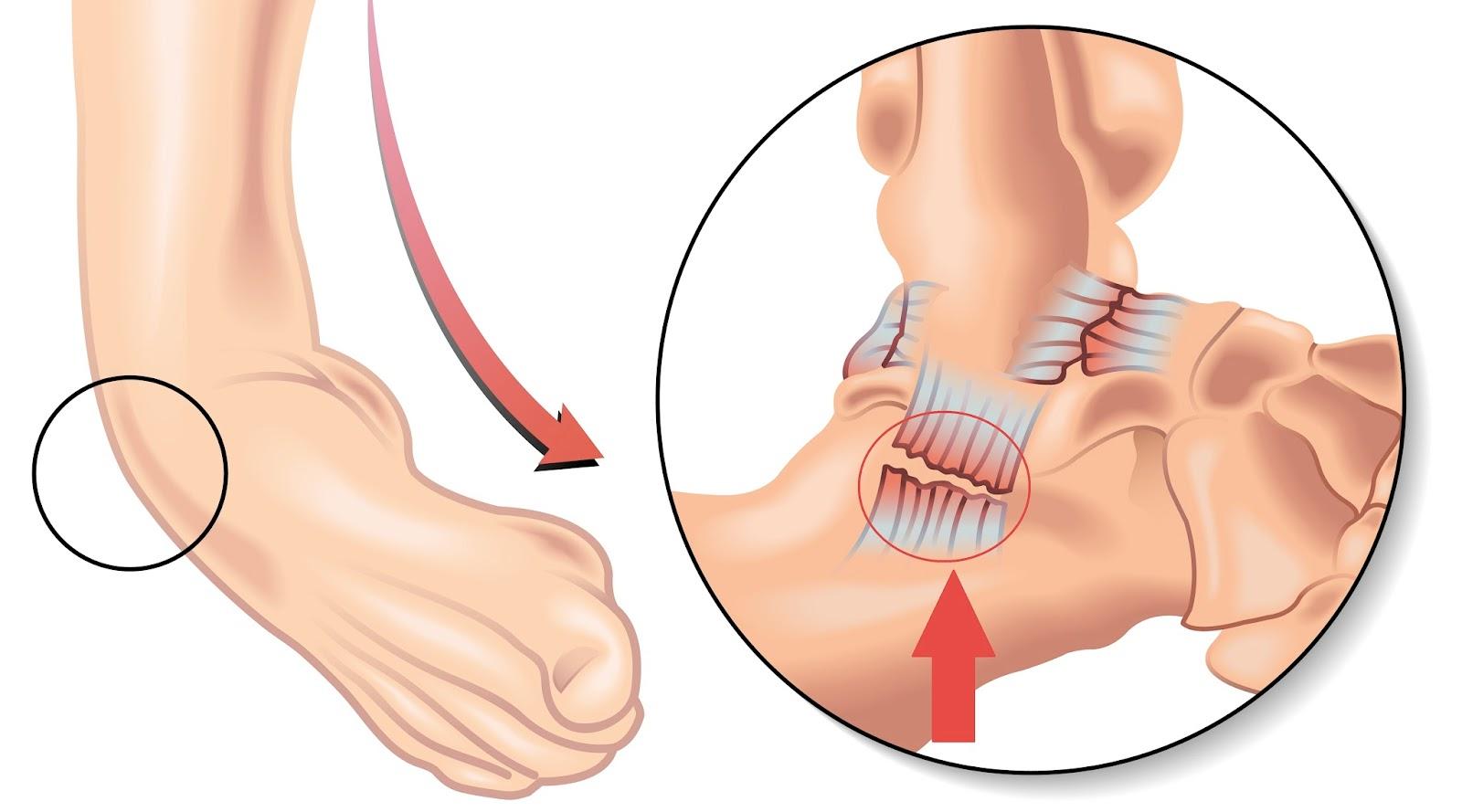 lésion du ligament sur la partie externe de la cheville