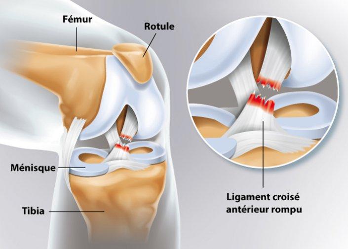 schématisation de la rupture du ligament de genou