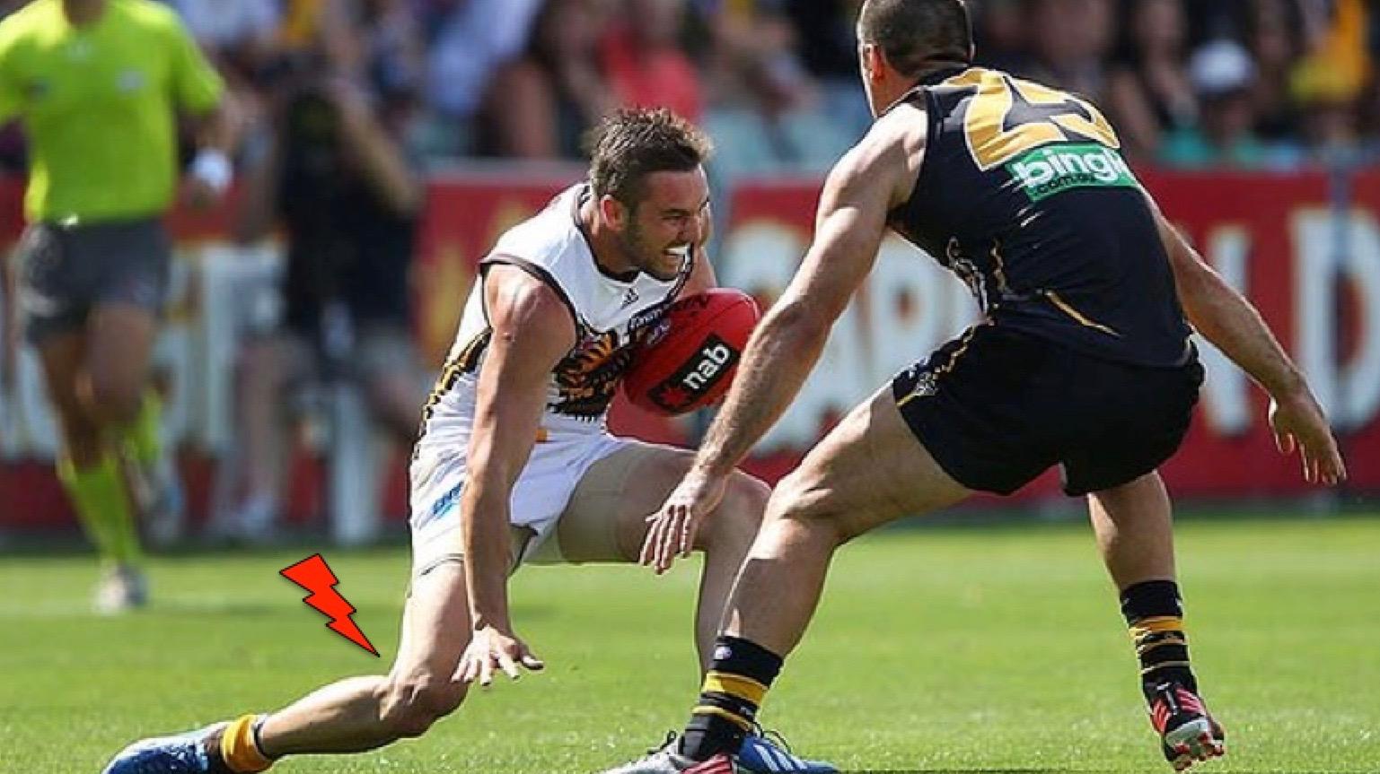 traumatisme de genou d'un joueur lors d'un match de foot